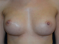 Case 114 - Subfascial breast augmentation, Mentor® anatomical implants 345 cc