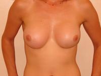 Case 13 : Muscle splitting biplane breast augmentation, Mentor® anatomical implants 330 cc