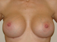 Case 15 : Muscle splitting biplane breast augmentation, Mentor® anatomical implants 380 cc after 18 months breastfeeding