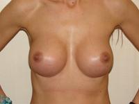 Case 16 : Muscle splitting biplane breast augmentation, Mentor® anatomical implants 380 cc
