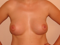 Case 19 : Subfascial breast augmentation, Mentor® anatomical implants 390 cc