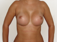 Case 22 : Subfascial breast augmentation, Mentor® anatomical implants 350 cc