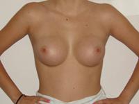Case 27 : Subfascial breast augmentation, Mentor® anatomical implants 225 cc