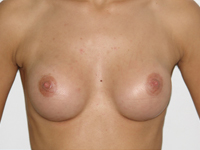 Case 30 : Subfascial breast augmentation, Mentor® round implants 175 cc