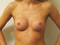 Case 31 : Subfascial breast augmentation, Mentor® round implants 200 cc