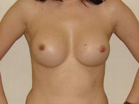 Case 35 : Subfascial breast augmentation, Mentor® round implants 275 cc