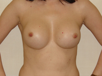 Case 35 : Subfascial breast augmentation, Mentor® round implants 275 cc
