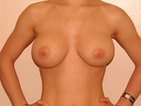 Case 37 : Muscle splitting biplane breast augmentation and internal mastopexy, Mentor® anatomical implants 300 cc