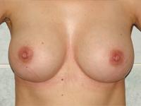 Case 39 : Subfascial breast augmentation, Mentor® anatomical implants 300 cc