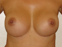 Case 46 : Muscle splitting biplane breast augmentation, Mentor® anatomical implants 330 cc