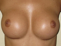 Case 47 : Muscle splitting biplane breast augmentation, Mentor® anatomical implants 330 cc