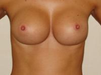 Case 48 : Muscle splitting biplane breast augmentation, Mentor® anatomical implants 330 cc