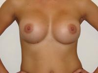 Case 50 : Muscle splitting biplane breast augmentation, Mentor® anatomical implants 380 cc