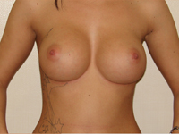 Case 5 : Muscle splitting biplane breast augmentation, Mentor® anatomical implants 330 cc