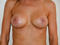 Case 52 : Muscle splitting biplane breast augmentation, Mentor® anatomical implants 380 cc