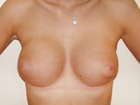 Case 62 : Muscle splitting biplane breast augmentation, Mentor® anatomical implants 330 cc