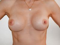 Case 65 : Muscle splitting biplane breast augmentation, Mentor® anatomical implants 330 cc