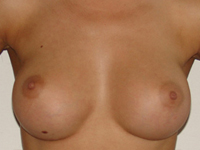 Case 7 : Subfascial breast augmentation, Mentor® anatomical implants 330 cc