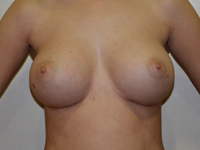 Case 79 : Muscle splitting biplane breast augmentation, Mentor® anatomical implants 380 cc