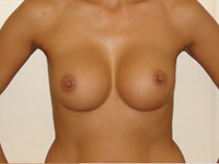 Case 8 : Subfascial breast augmentation, Mentor® anatomical implants 330 cc