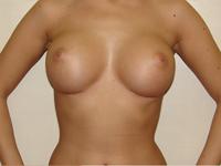 Case 9 : Subfascial breast augmentation, Mentor® anatomical implants 380 cc