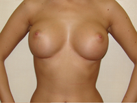Case 9 : Subfascial breast augmentation, Mentor® anatomical implants 380 cc
