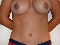 Cazul 8: Mamopexie cu augmentare mamara (implanturi anatomice Mentor 345 cm³) si lipoabdominoplastie