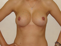 Cazul 2: Mamopexie cu augmentare mamara, implanturi anatomice Mentor 225 cm³