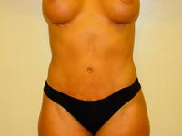 Caz 4: Abdominoplastie