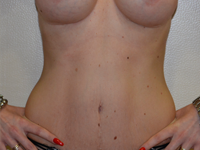 Caz 11: Abdominoplastie