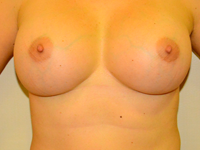 Case 12: Muscle splitting biplane breast augmentation, Mentor® anatomical implants 300 cc