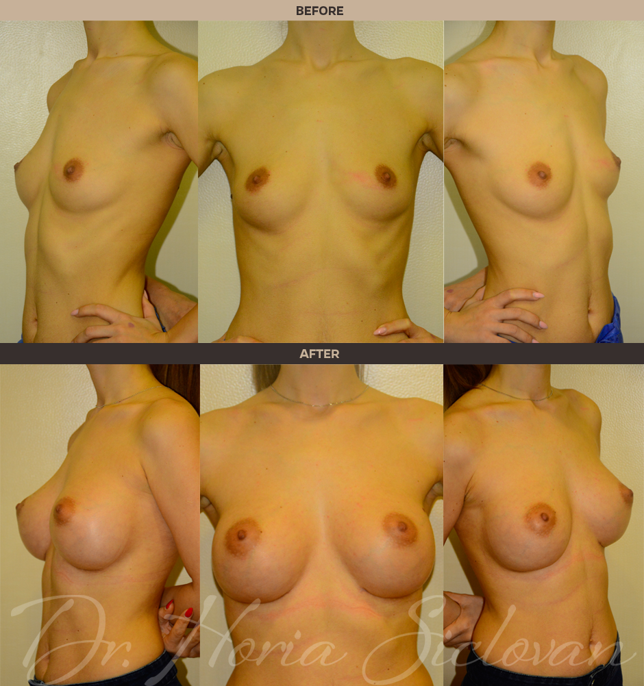 breast augumentation pictures by size