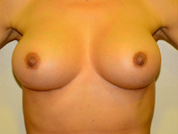 Case 22: Muscle splitting biplane breast augmentation, Mentor® anatomical implants 380 cc