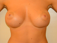 Case 27: Muscle splitting biplane breast augmentation, Mentor® anatomical implants 390 cc