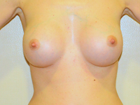Caz 28: Muscle splitting biplane breast augmentation, Mentor® anatomical implants 235 cc
