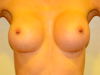 Case 30: Muscle splitting biplane breast augmentation, Mentor® anatomical implants 330 cc