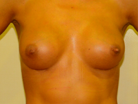 Case 34: Muscle splitting biplane breast augmentation, Mentor® anatomical implants 290 cc