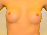 Case 37: Muscle splitting biplane breast augmentation, Mentor® anatomical implants 330 cc