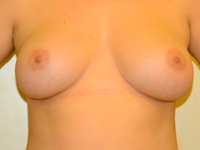 Case 40: Muscle splitting biplane breast augmentation, Mentor® anatomical implants 310 cc