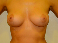 Case 42: Muscle splitting biplane breast augmentation, Mentor® anatomical implants 225 cc