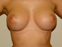 Case 43: Muscle splitting biplane breast augmentation, Mentor® anatomical implants 380 cc