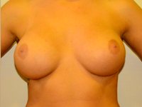 Case 49: Subfascial breast augmentation, Mentor® anatomical implants 380 cc