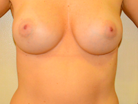 Case 53: Subfascial breast augmentation, Mentor® anatomical implants 305 cc