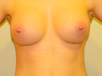 Case 55: Muscle splitting biplane breast augmentation, Mentor® anatomical implants 330 cc