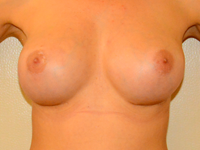 Case 56: Muscle splitting biplane breast augmentation, Mentor® anatomical implants 330 cc