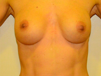 Case 59: Muscle splitting biplane breast augmentation, Mentor® anatomical implants 270 cc