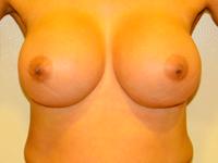 Case 60: Muscle splitting biplane breast augmentation, Mentor® anatomical implants 380 cc