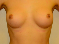Case 61: Muscle splitting biplane breast augmentation, Mentor® anatomical implants 260 cc