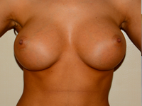 Case 67: Muscle splitting biplane breast augmentation, Mentor® anatomical implants 380 cc