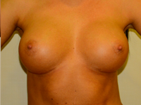 Case 68: Muscle splitting biplane breast augmentation, Mentor® anatomical implants 300 cc